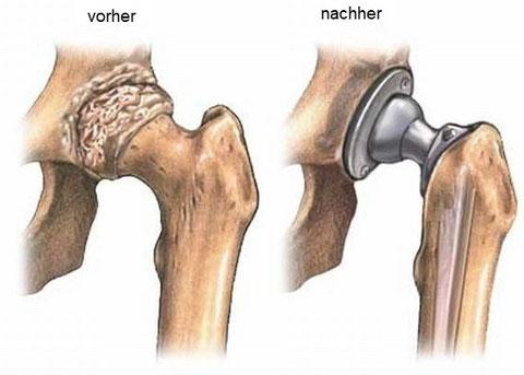 Abb 3 Links arthrotisches Hüftgelenk, rechts nach Einsatz einer Hüftprothese