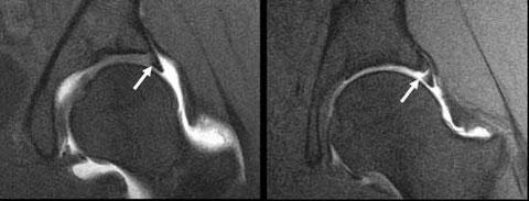 Abb 2 Links gesunder Femurkopf, rechts arthrotischer Femurkopf