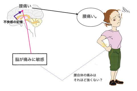 慢性腰痛では腰以外にも引き起こす原因が。 港区の鍼灸院
