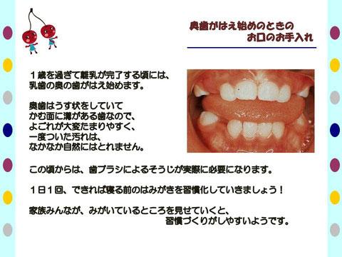 徳島 矯正歯科 鳴門市 歯並び 子ども