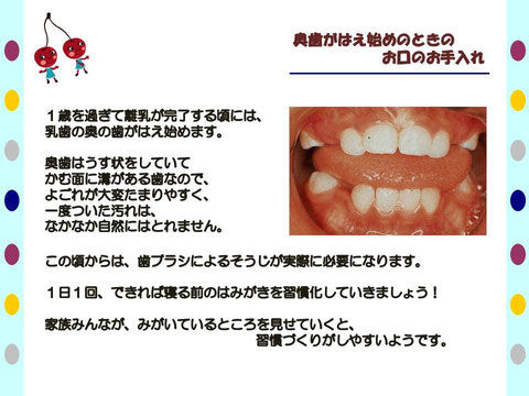 鳴門市 歯医者 歯科 小児 奥歯