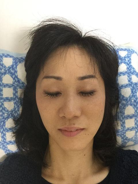 施術後、血色がよくなり顔の筋肉の緊張がとれました