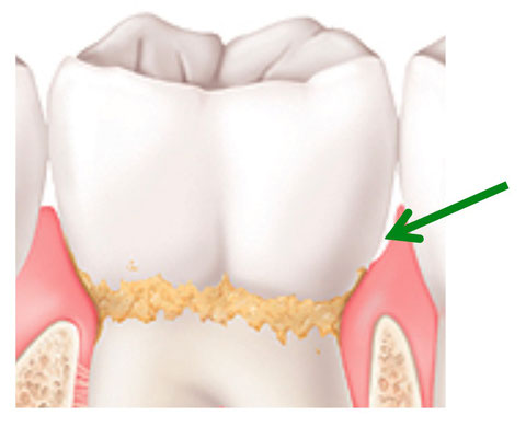 Zahnfleischtasche