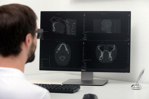 CT Weisheitszähne Dr. Hornung