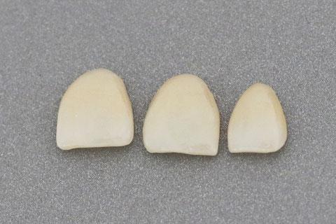 Zahnersatz Veneer
