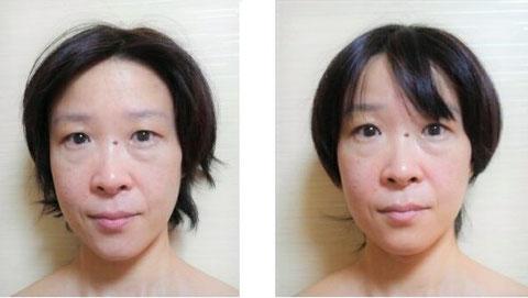 小顔美人シンメトリー・左(ビフォー)右(アフター)の写真