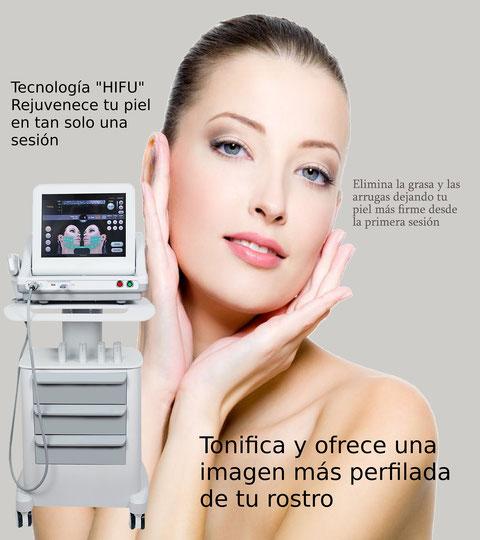 HIFU Facial. lifting sin pasar por quirófano