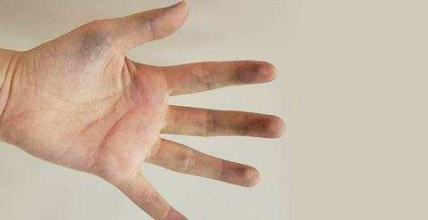 ススで汚れた手