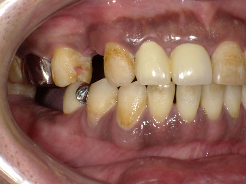 義歯(保険)の装着前