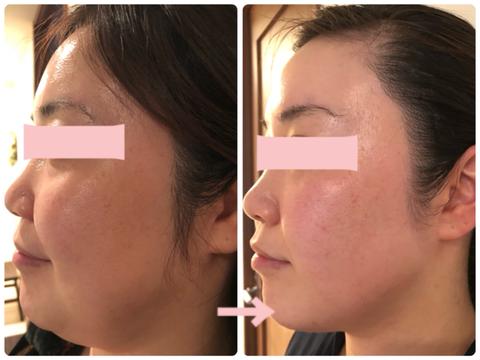 多治見の肌改善専門エステサロンでビューティークラフトメソッドの美の職人技フェイシャルで顎のフェイスラインのたるみ改善をした症例