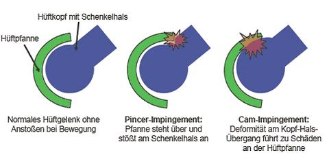 Abb 1 Gesunde Hüfte bei Beugung, Pincer- und CAM- Impingement bei Beugung