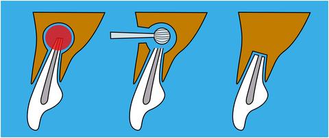 Zeichnung Wurzelspitzenresektion