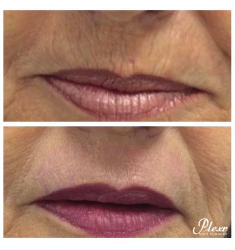 Cómo eliminar las arrugas en el labio superior con Plexr