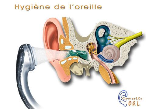 Peut on mettre de l'eau dans l'oreille pour enlever un bouchon de cérumen