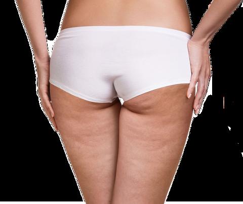 Cellulite geschädigte Haut sichtbare Dellen