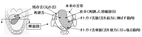 図2 或る舌癌患者の舌の状態