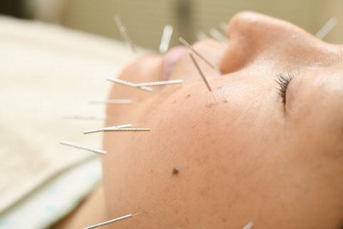 美容鍼灸デラックス80分コースで体質改善