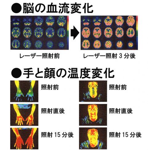 星状神経節照射後の変化