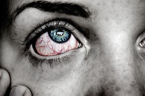 ein rotes Trockenes Auge