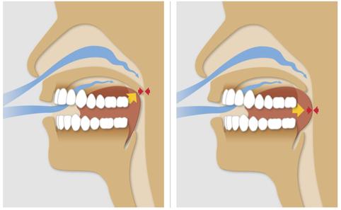 Entspannen sich die Rachenmuskeln und die Zunge zu sehr, werden die Atemwege blockiert - und verursachen so einen zeitweisen Verschluss des Atemweges.