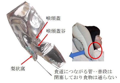 仰臥位では梨状窩と喉頭蓋谷に飲食物が貯まる。嚥下反射が起こるまでに誤嚥する可能性がある。