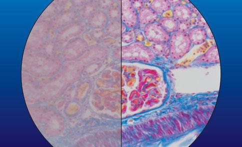 Claude Gonon Microscopie : comparaison entre une optique avant nettoyage (à gauche) et après nettoyage (à droite)
