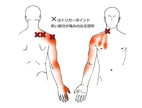 四十肩、首肩のトリガーポイント
