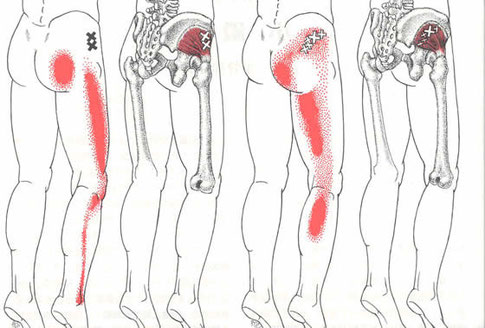足のしびれ、坐骨神経痛