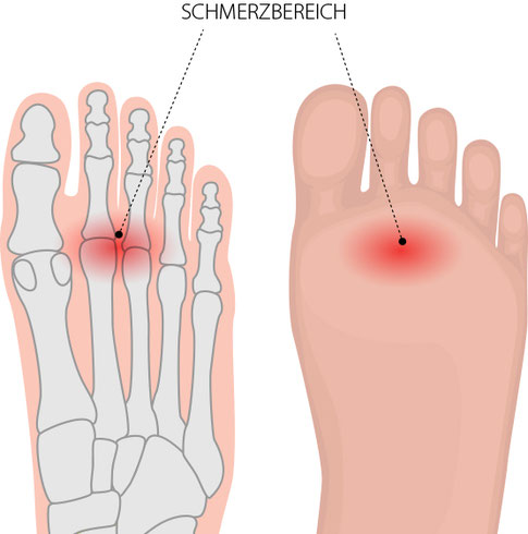 Metatarsalgie, Schmerzen im Vorfußbereich – Dr. Matthias Marquardt