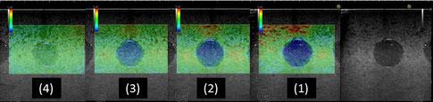 ELPT-003C エラストグラフィ像とBモード像