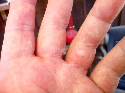 Brandblasen am Mittel- und Zeigefinger *autsch*