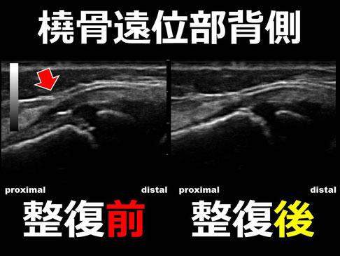 豊田市の接骨院 おおつか接骨院 右橈骨遠位端骨折疑い 超音波画像