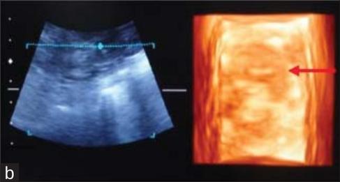hund ultraschall