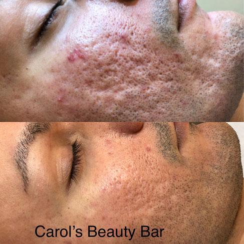 Needling Basel Carol's Beauty Bar Kosmetikstudio