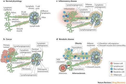 Ein Lymphknoten mit Lymphgefäßen in unterschiedlichen Zuständen.