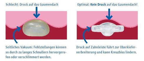 Welchen Einfluss der Schnuller auf die Form der Kiefer hat. (© Curaden Swiss GmbH)