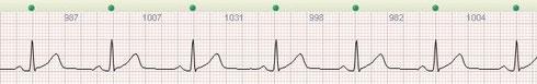 EKG mit Analyse der Herzratenvariabilität (HRV)