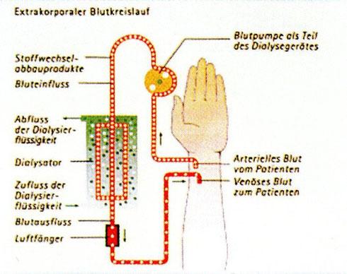 Grafik- von der Hämodialyse