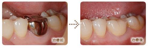 八戸市の歯科 くぼた歯科医院