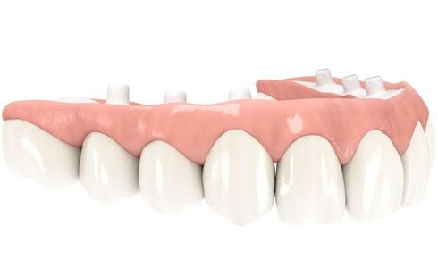 Brücke auf sechs Implantaten, Keramikgerüst mit ästhetischer Verblendung