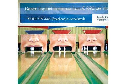 歯科インプラントの広告!