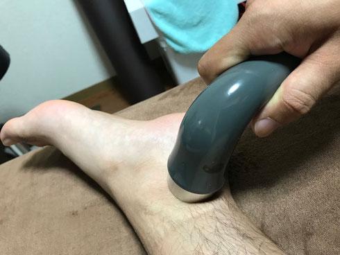 小牧 捻挫 急性外傷 鍼灸 超音波