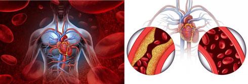 INUSpherese® 德国INUS原创双模靶向性血液排毒疗法 血液净化 德国欧亚商旅 Orasien