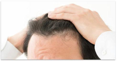 前頭部の薄毛