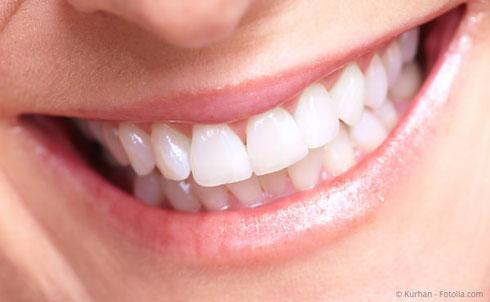 Anziehend weiße Zähne mit Bleaching