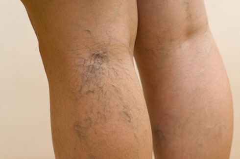 Varicose and spider vein treatment in Fayetteville, Georgia.