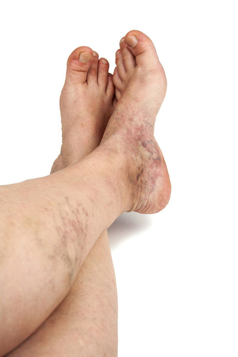 Chronic venous disease causes discoloration and pigmentation changes in the calf and ankle. It is important to seek treatment as this is stage 4 out of 6 in regard to venous disease and stage 5 is an open wound.