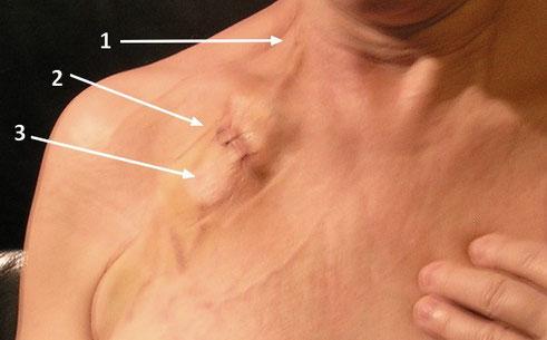 L DROP ZONE  : 1) la toute petite incision (un seul point dirait-on) 2) la grande incision (3 points ?) et 3) le Port-à-Cath© dissimulé sous la peau.... Seulement 3 jours après l'intervention.