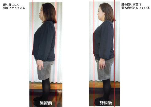 反り腰の改善例