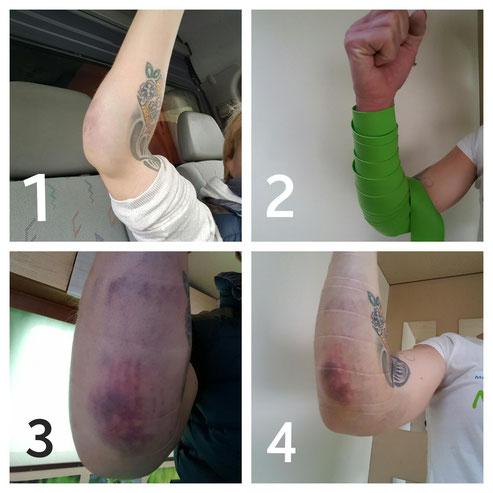 Flossing Hämatom Bluterguss Flossing Behandlung mit Prellung. Deutliche Verbesserung schon am zweiten Tag.